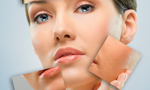 Comment corriger simplement les imperfections de sa peau